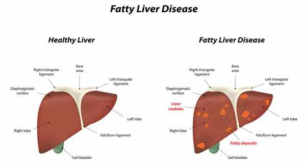 fatty-liver-treatments